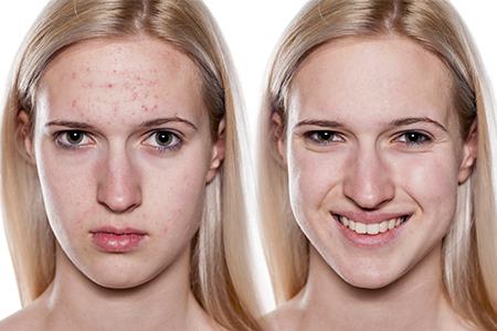 Wie bekämpft man Akne?